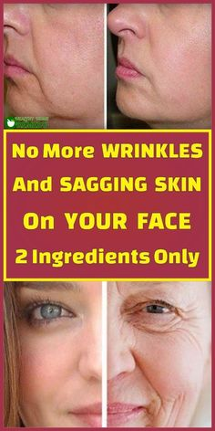 Skin Care - No More Wrinkles And Sagging Skin On Your Face – 2 Ingredients Only - Wallpaper Pinme Beauty Care, Beauty Skin, Beauty Tips, Diy Beauty, Beauty Ideas, Beauty Habits, Beauty Secrets, Skin Care Regimen, Skin Care Tips