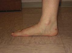 Mitől alakul ki a lúdtalp? Male Feet