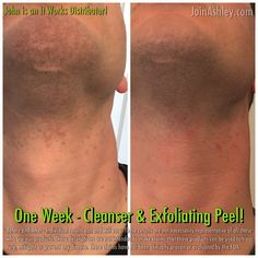 Hey!! Remember when I said I was experimenting with the It Works Cleanser & Exfoliating Peel? Check this out!! I get HORRIBLE shave bumps across my neck but LOOK   If you're struggling with skin care call me! We have a great line that takes care of so many issues!! 502-608-6396  #menstyle #mensphysique #skincare #shaving #beard #mustache #dad