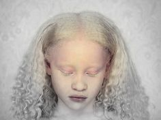 Cameroonian Girl - Africa | photo via MediAfritiQ | Contrary to most traditional myths, the Albino-Africana is not cursed, she is not a witch, or an exotic object of ridicule.