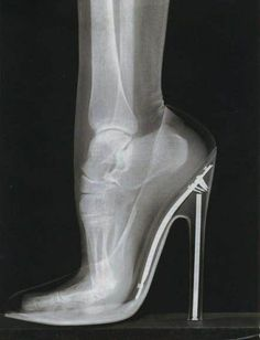 "X-Ray of foot in high heeled shoe.......!  just look at the physical stress that is placed on the joints ! It is very sad to see what people do to themselves ""physically"" in the name of fashion.  its harmful ""morally"" and also ""physically"" so STOP just coping blindly other fools... 2 lines of knowledge can make u more attractive than 2 inches of heel.  avoid it, Ur health is more important ."