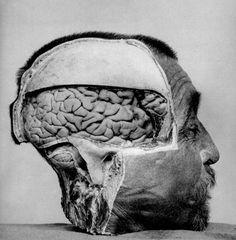 a brain, a such a powerful place