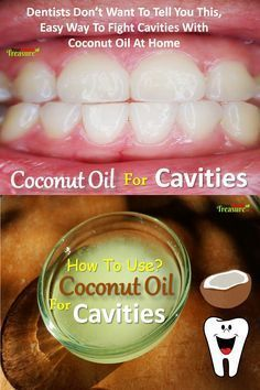 Coconut Oil For Cavities: Heal Cavities With Coconut Oil, Oil Pulling, How To Use Coconut Oil For Cavities, How To Get Rid Of Cavities. Dentists don't want to tell you this, easy way to fight cavities with coconut oil at home. Easy Home Remedies For Cavities, Remove Cavities From Your Teeth