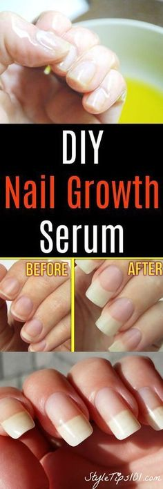 DIY Nail Growth Serum: tsp aloe vera gel tsp castor oil (if you don't have castor oil, you can also use coconut oil, olive oil, or flaxseed oil) 1 vitamin E capsule a garlic clove Massage into the nail and cuticle. Leave on. Hair Loss Cure, Oil For Hair Loss, Diy Beauty, Beauty Hacks, Beauty Tips And Tricks, Beauty Guide, Homemade Beauty, Beauty Ideas, Beauty Secrets