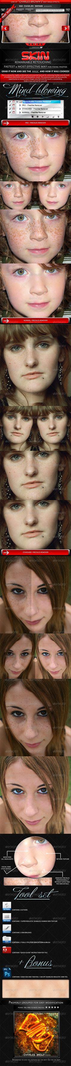 Remarkable skin retouching