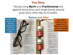 Healthy eyesight is a realistic goal. List Of Essential Oils, Young Living Essential Oils, Essential Oil Blends, Coconut Milk Shampoo, Healing Oils, Young Living Oils, Oil Uses, Medicine Cabinet, Wellness