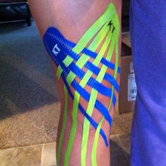 Excellent example of a KT Tape edema knee taping