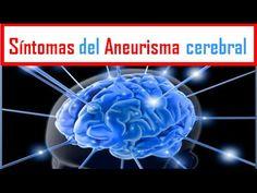 ANEURISMA: Síntomas del Aneurisma cerebral
