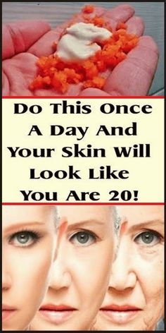Health And Fitness Tips, Health And Beauty Tips, Health Diet, Beauty Care, Beauty Skin, Beauty Nails, Beauty Tips And Secrets, How To Get Rid Of Pimples, Luscious Hair