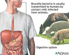 Undulant fever = brucella.  Suis, melitensis and canis.