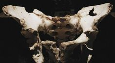 3D Printed Pelvis Helps Man With Rare Bone Cancer : All About 3D Printing | Printing The Future!