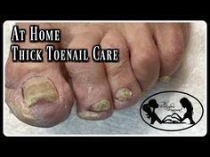 Pedicure At Home Elderly Toenails Cutting Thick Toenails and Nail Fungus - Care - Skin care , beauty ideas and skin care tips Toenail Fungus Remedies, Toenail Fungus Treatment, Nail Treatment, Fungus Toenails, Pedicure Colors, Nail Colors, Thick Toenails, Pedicure At Home, Ingrown Toe Nail