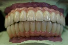 Final - A GIE Dental Lab Case Study Pinned by www.giedentallab.com