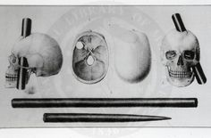 Representation of the skull of Phineas Gage. The tampering iron driven through his head had severely damaged his anterior frontal cortex (there is debate as to both sides, or only the left was destroyed). Amazingly, he appeared to make a full recovery, however his personality was severely altered.