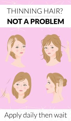 Hair Remedies How to naturally prevent hair fall and hair loss! This new system is proven to encourage new hair growth and nourish the follicle. New Hair Growth, Hair Growth Tips, Savon Soap, Hair Cleanser, Hair Loss Remedies, Hair Regrowth, Strong Hair, Hair Loss Treatment, Hair Health