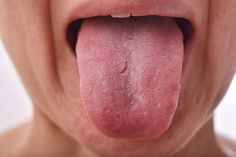 Did you know that similar to a fingerprint, each person's tongue is unique? Most people take their tongue for granted — barely giving it a second thought; however, without this amazing organ, you couldn't talk, eat, or swallow. Each papilla has an average of six taste buds buried inside the tissue. These taste buds are […] The post Things Your Tongue Tells You About Your Health appeared first on Healthy Living Daily.