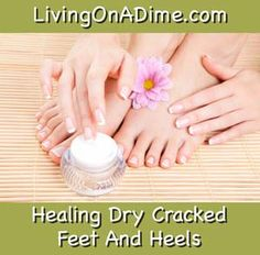 Healing Dry Cracked Feet And Heels