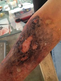 3rd degree burn- latex, tissue, gelatin, alcohol colors and KY