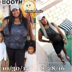 Transformation of the Day: Sommer lost 125 pounds. This wife and mom of 2 small children was facing obesity, health problems and was simply unhappy. She decided that making major lifestyle changes and opting for weight loss surgery was the best path for her journey. Check out her transformation story.