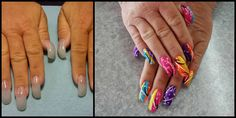 Acrylic Nails Using Extreme Curved Tips Nail Art