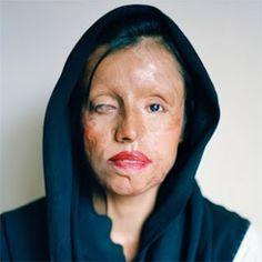 Skin Deep Exhibition Proposal: Izabella Demavlys
