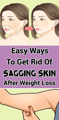 How To Smooth Out Saggy Skin After Losing Pregnancy Weight - TheHealthRays Natural Health Tips, Health And Beauty Tips, Fitness Transformation, Weight Loss Tips, Lose Weight, Tighten Loose Skin, Tighten Stomach, Tighten Pores, Lower Stomach