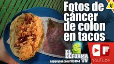 Fotos de cáncer de colon en tacos