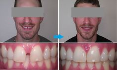 #StraighenTeeth Without #Braces | #OrthoSnapNewYork | #Manhattan #Brooklyn | 1.844.678.4676 http://www.OrthoSnapNY.com/