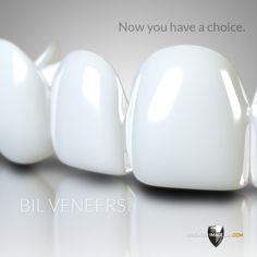 Veneers Teeth, Dental Veneers, Perfect Smile Teeth, Snap On Smile, Misaligned Teeth, Dentist Logo, Crooked Teeth, Smile Makeover, Tooth Pain