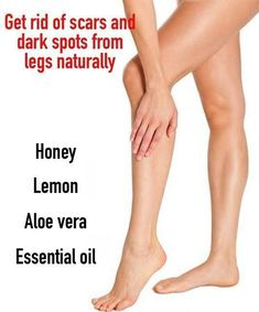 Look after your skin with one of these tips.Is a wonderful time to take care of your skin and keep looking and feeling healthy. Look at all these should have skincare hacks. Remove Scars On Legs, Leg Scars, Dark Spots On Legs, Getting Rid Of Scars, Smooth Legs, Get Rid Of Blackheads, Pimples, Skin Care Remedies, Natural Remedies