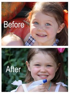 How I Reversed My Daughter's Tooth Decay I have a friend who did something similar and the cavity went away.