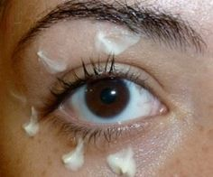 'Remove' Your Eye Bags Instantly