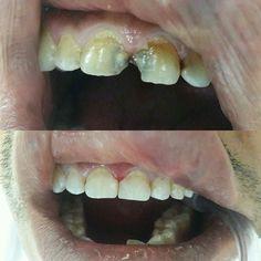 #Kandil#şekeri#noeffects #kompozit #dolgu #diş #dişhekimi #adsm #dentist #dentistry #dentisty #dentista #dentistrylife #dentistrymyworld #compositeresin #bonding #dolgu #estetik #esthetic #estheticdentistry by bahaceran Our General Dentistry Page: http://www.myimagedental.com/services/general-dentistry/ Google My Business: https://plus.google.com/ImageDentalStockton/about Our Yelp Page: http://www.yelp.com/biz/image-dental-stockton-3 Our Facebook Page: https://www.facebook.com/MyImageDental…