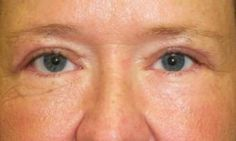 Close up of a mans puffy eyes also known as periorbital edema Brow Lift Surgery, Nephrotic Syndrome, Droopy Eyelids, Under Eye Puffiness, Thyroid Disease, Puffy Eyes, Reduce Inflammation, Brows, Pictures