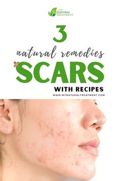 3 Natural Remedies for Scars that Work - for burn scars, cut scars or acne scars on the face and body Scar Remedies, Natural Remedies, Face Skin, Face And Body, Scar Treatment, Skin Problems, Acne Scars, Natural Treatments, Natural Skin