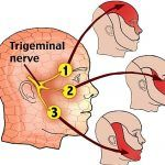 What Is Acupressure What Is Trigeminal Neuralgia? The trigeminal nerve carries signals between the brain and the face. Trigeminal neuralgia (TN) is a painful condition in which this nerve becomes irritated. The trigem. Trigeminal Neuralgia Treatment, Occipital Neuralgia, Nerf Facial, Nerve Disorders, Neurological Disorder, Sensory Nerves, Facial Nerve, Cranial Nerves, Nerve Pain