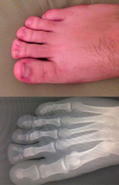 toe fork... - (forked)(toenails)(foot)(toes)(x-ray) - #forked #toenails #foot #toes #xray