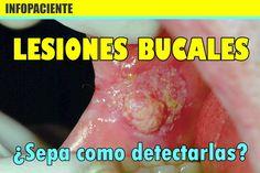 LESIONES BUCALES: ¿Sepa como detectarlas?   Directorio Odontológico