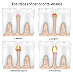 It is an infection that has developed in the tissues of your teeth. Plaque buildup and tartar deposits caused by improper dental and oral care are the main causes of gum disease.  #Gum_Treatment  http://www.drquadri.com/palm-bay-dental-services/periodontalgum-disease-treatment/
