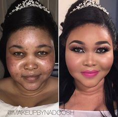 Before and after Bridal makeover by me❤️ focusing on skin, acne coverage, under eye correction & nose contouring. Acne Makeup, Glam Makeup, Makeup Tips, Beauty Makeup, Makeup Goals, Skin Makeup, Cool Makeup Looks, Bridal Makeup Looks, Natural Makeup Looks
