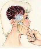 Celebs Discover Temporal Tendonitis Headache A Facial Pain Condition Tmj Massage Massage Therapy Foot Massage Migraine Headache Jaw Pain Craniosacral Therapy Accupuncture Trigeminal Neuralgia Trigger Points Tmj Massage, Reflexology Massage, Massage Therapy, Foot Massage, Migraine Headache, Pressure Points For Headaches, Occipital Neuralgia, Jaw Pain, Trigger Points