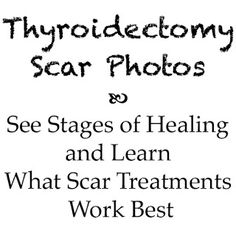 A blog post that includes a series of photos taken after my thyroid surgery to show how my scar healed over time. Also mention of scar treatment products that worked for me.