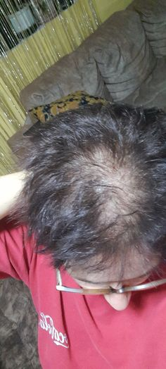 Hair fall out