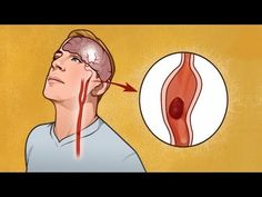 A stroke happens when the blood flow to the brain is stopped and the brain cells start dying. Strokes can happen to anyone - more than a third of those hospitalized are under 65 years old, according to MedicineNet. How To Get Rid, How To Know, Stroke Association, Dip Workout, Hips Dips, 65 Years Old, Acv, Signs And Symptoms, High Cholesterol
