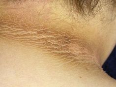 Dark spots on the neck: How to get rid of the natural way? The dark spots on the neck are Acantosis Nigricans, Dark Patches On Skin, Dark Elbows, Weight Loss Chart, Perfume, Aging Gracefully, Dark Spots, How To Get Rid, Dark Skin