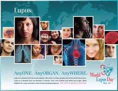 """""""AnyONE. AnyORGAN. AnyWHERE. #Lupus is a disease that has no boundaries. More than 5 million people around the world have lupus. Lupus is a  disease that can develop in women, men, and children and can affect any organ. Band Together for Lupus and learn more at www.worldlupusday.org """""""