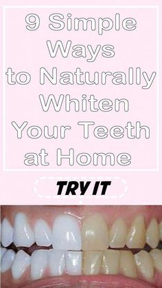 9 Tips To make Your Teeth White At Home In Just A Few Days Many dream of health… - Everything You Need To Know About Oral Health Trauma, Teeth Whiting At Home, Get Whiter Teeth, Beautiful Teeth, Teeth Bleaching, Receding Gums, Stained Teeth, Natural Teeth Whitening, Color Kit