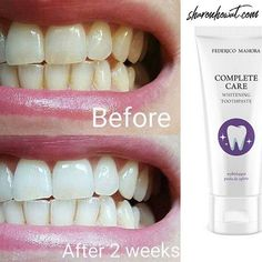 You can order so much more with FM than just fragrances and makeup.  Check out the 2-week results from using our whitening toothpaste! Customers get this for under 7 but as a direct FM customer you can get you it even cheaper drop me a message to open your free account today or hit the link in my bio (@sharon.howat) Deep Relationship Quotes, Fm Cosmetics, Cosmetics & Perfume, Inspirational Artwork, Smile Is, Perfume Quotes, Secret Crush Quotes, Shimmer N Shine, Teeth Whitening