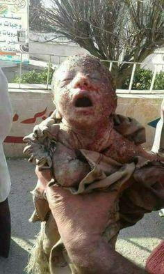 "LoneStenberg on Twitter: ""#stopAfrinGenocide stop the KILLING of Kurdish people in Afrin… """