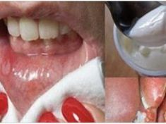 Cold And Canker Sores Dental, Base Natural, Nail Problems, Eating Organic, Home Remedies, Healthy Living, Food And Drink, Health Fitness, Skin Care